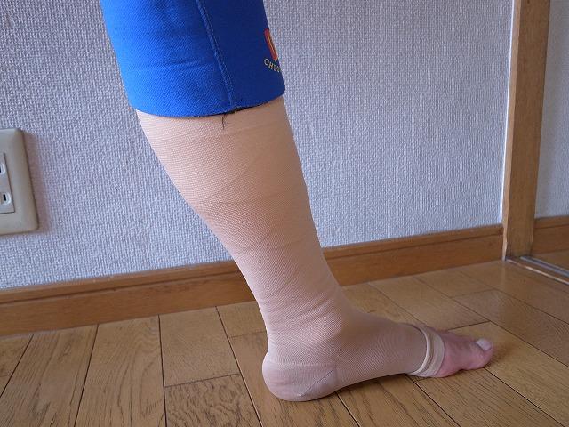 下肢静脈瘤レーザー手術を受けました