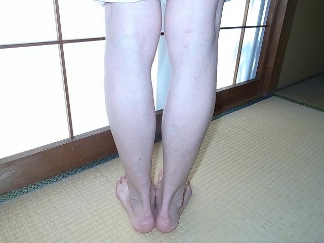 下肢静脈瘤レーザー手術後1年がたちました